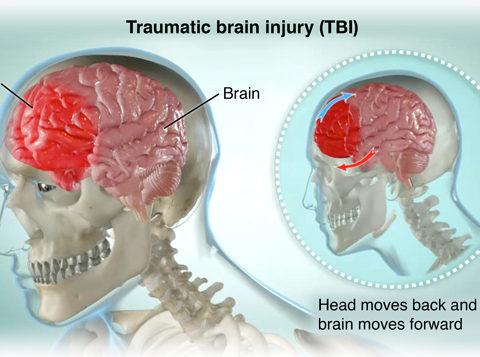 Сколько держат в больнице при сотрясении мозга